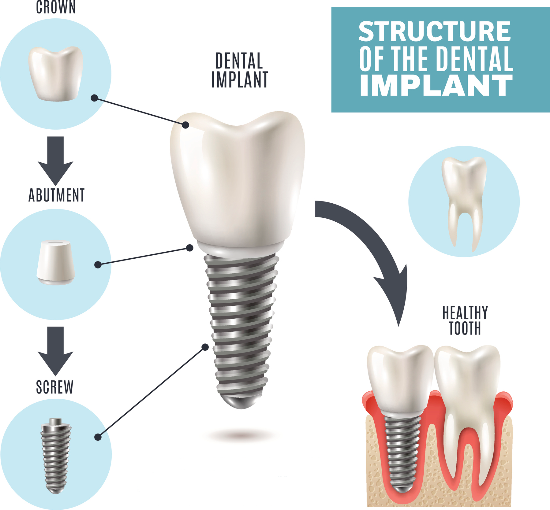 Structure of the dental implants utilized by Centennial of  Boise.