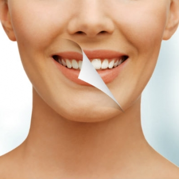 The 411 on At-Home Whitening